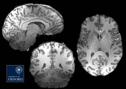 'Slices' from a brain scan.