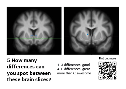 Two brain slice images from scans, where the aim is to identify the differences.