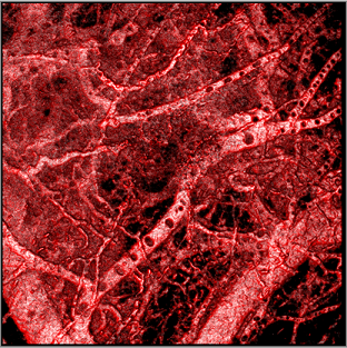 Blood vessel tree from experimental endometriotic lesion